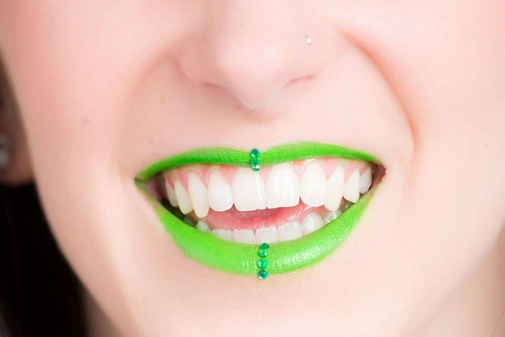 Qualitat Prevenció - dentistas palma mallorca encías sanas